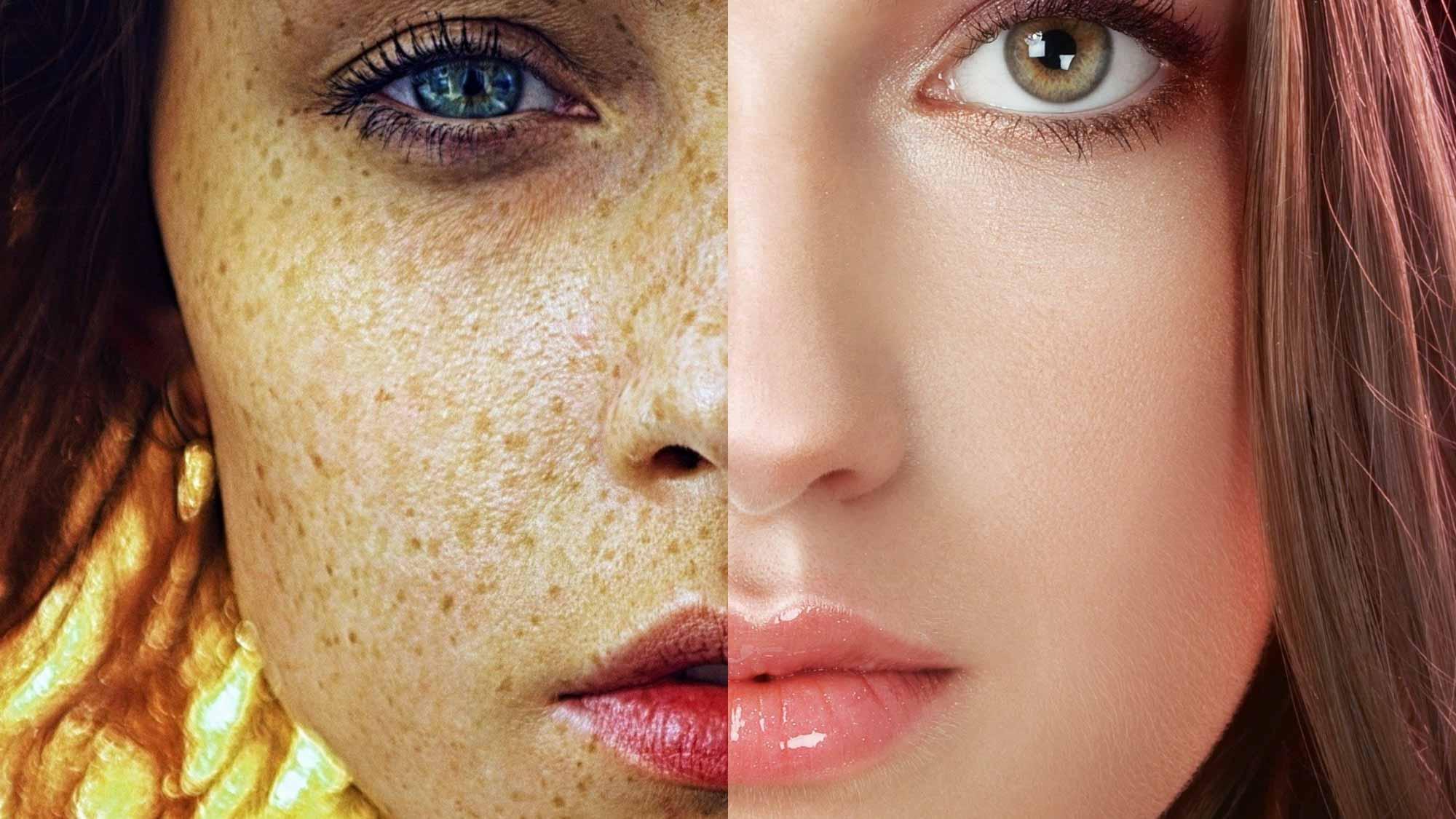 Дерматолог назвал 3 лучших способа восстановления кожи после отпуска