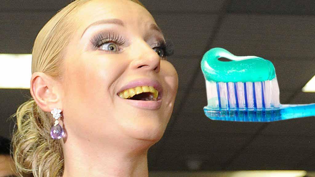 Как старая бабушка: Волочкова опозорилась с желтыми зубами