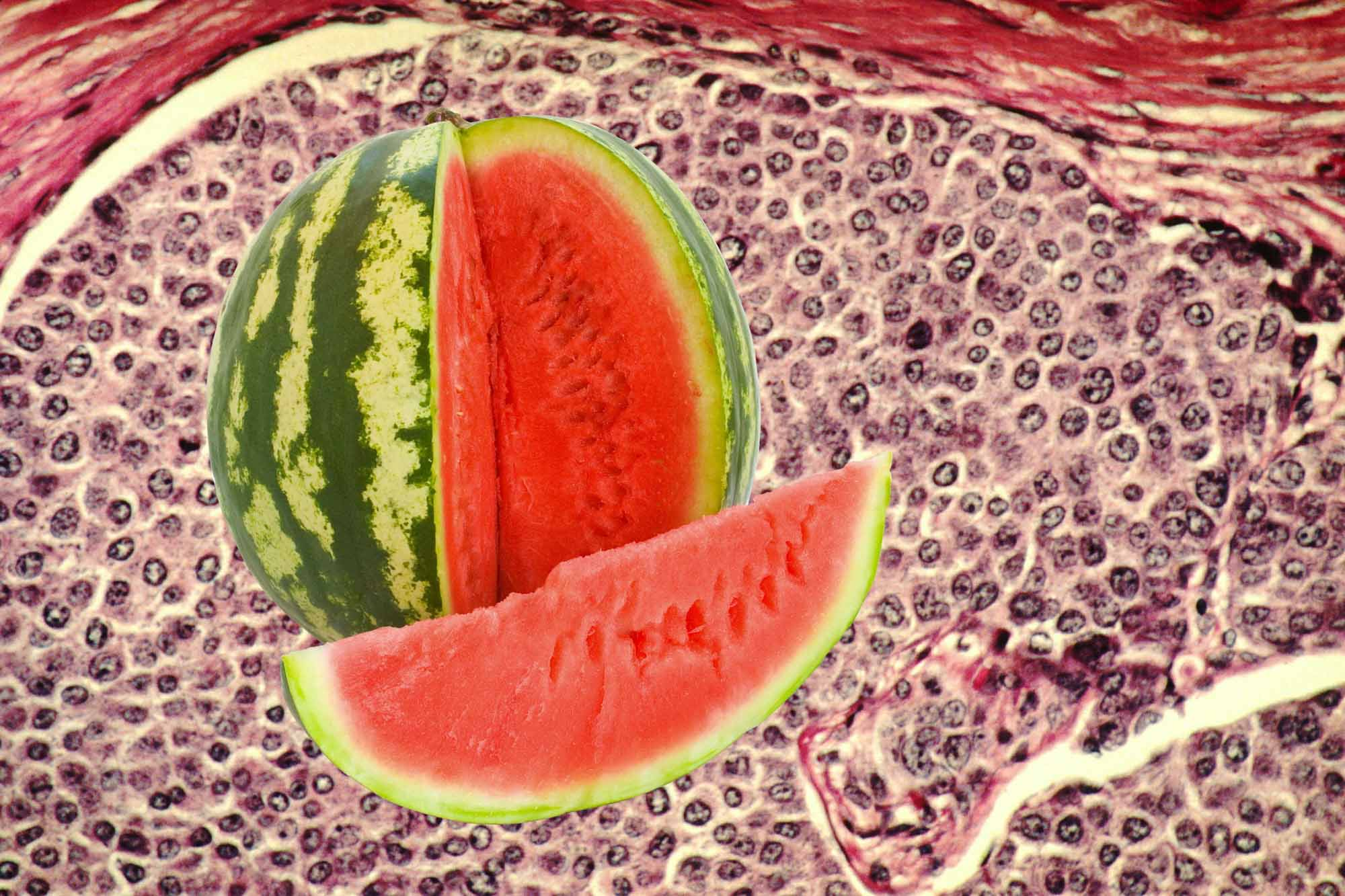 Арбузная диета и желудок