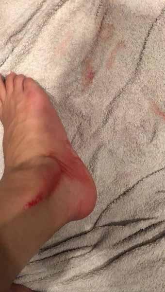 Гасанова зафиксировала несколько травм