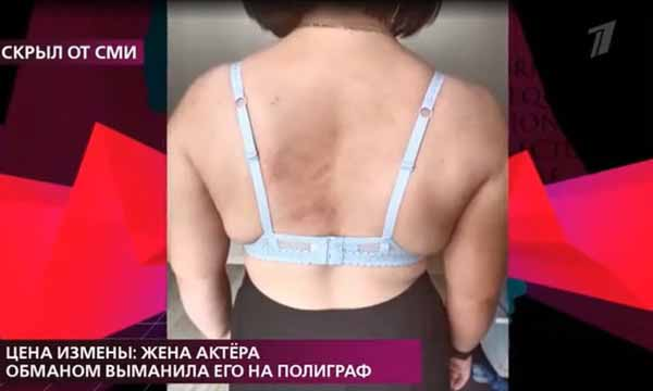 Женщина была травмирована по всему телу