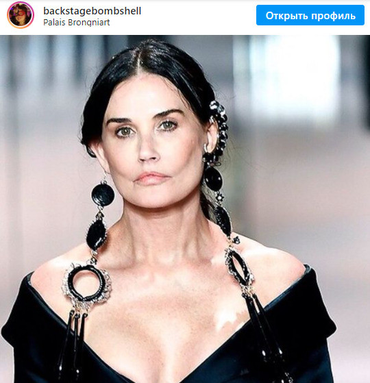 Похоже, актриса стала жертвой пластического хирурга