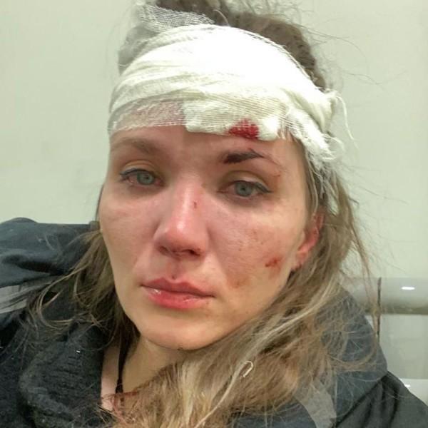 В результате драки Веденская получила травмы лица.