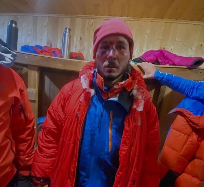 Альпинисты получили сильные обморожения